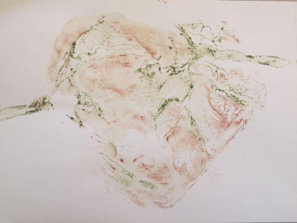 Twin Placenta