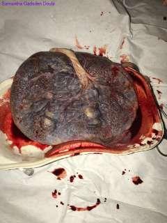 Powerful-Placenta